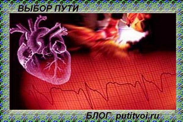 infarkt_serdtse